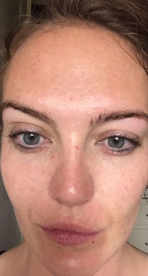 Collagen P.I.N. Micro-Needling After