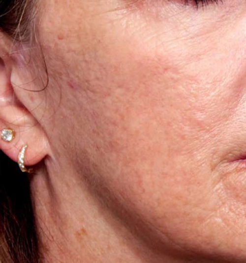 INFINI Radiofrequency with Microneedling After